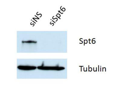 Rabbit Polyclonal Spt6 Antibody
