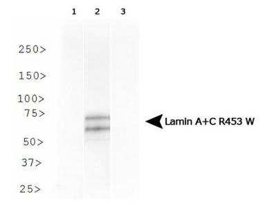 Lamin A + C R453W Antibody (12A-2F5)