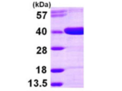 AKR1D1 Recombinant Protein