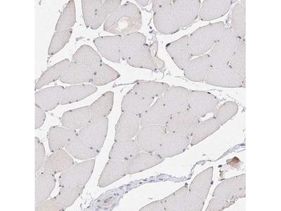 Glutaminase Antibody