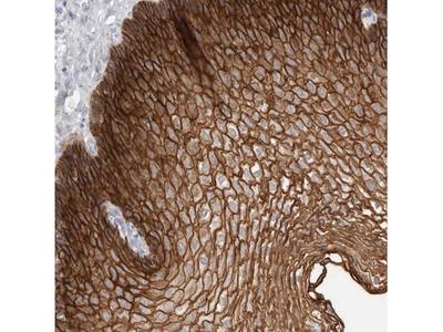 S100 calcium binding protein A14 Antibody