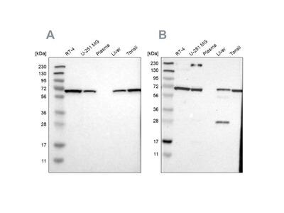 Leukotriene A4 Hydrolase / LTA4H Antibody
