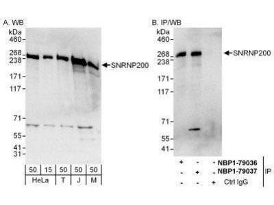 ASCC3L1 Antibody