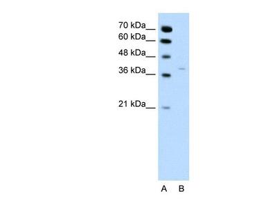 17 beta-HSD1 / HSD17B1 Antibody
