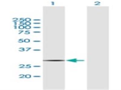 COX11 Antibody