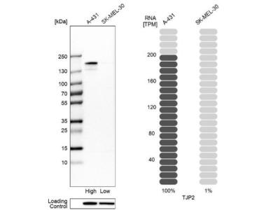 Tight Junction Protein 2 Antibody