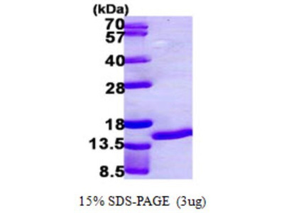 S100A7 / Psoriasin Protein