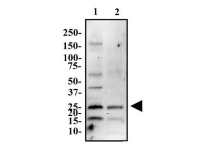 ASC / TMS1 Antibody