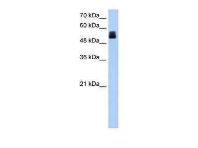 Rabbit Polyclonal CRISPLD2 Antibody