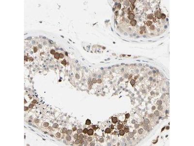 PTTG1 Antibody