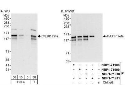 CBF2 Antibody