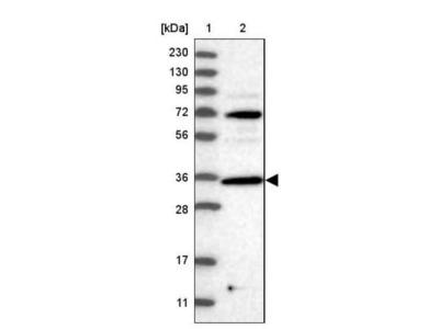 PPP1R3C Antibody