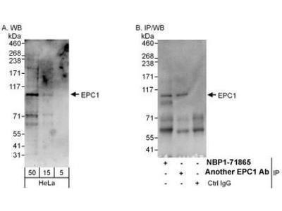 Rabbit Polyclonal EPC1 Antibody