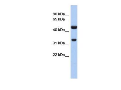 Cytosolic Sulfotransferase 1B1 / SULT1B1 Antibody