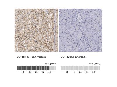 Anti-CDH13 Antibody