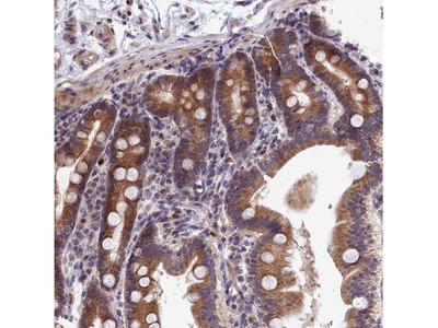 EHM2 Antibody