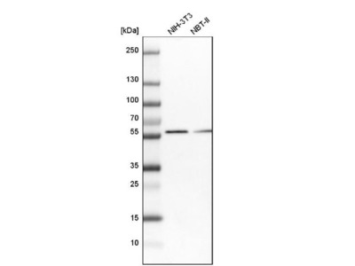 Sterol carrier protein 2 Antibody