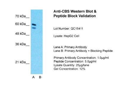 Rabbit Polyclonal CBS Antibody