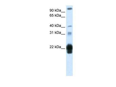 Placental Lactogen / CSH1 Antibody