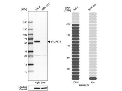 beta-1,4-Galactosyltransferase 1 / B4GalT1 Antibody