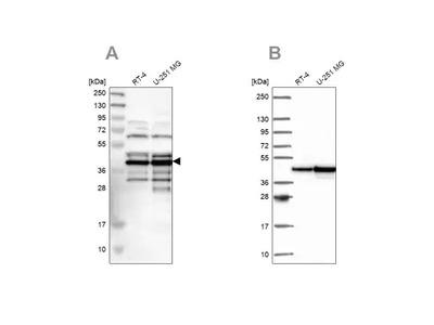 SLBP Antibody