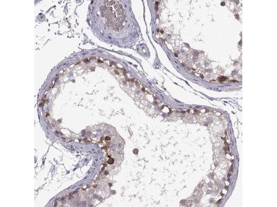 Meiosis 1 Associated Protein Antibody