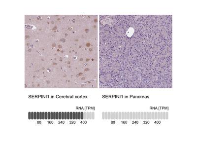Anti-SERPINI1 Antibody