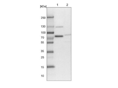 TMTC2 Antibody