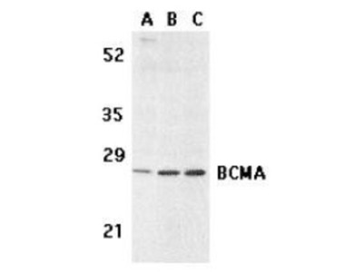 Rabbit Polyclonal BCMA / TNFRSF17 Antibody