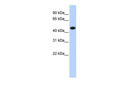 Rabbit Polyclonal Creatine Kinase, Muscle / CKMM Antibody