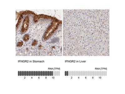 Anti-IFNGR2 Antibody