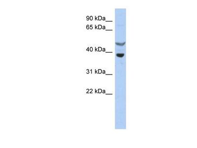 Rabbit Polyclonal SOCS-7 / Nck / NAP4 Antibody