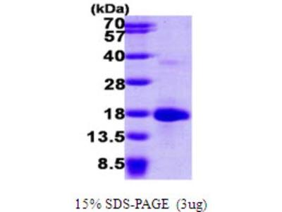 LSM4 Protein