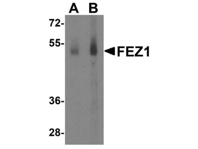 Rabbit Polyclonal FEZ1 Antibody