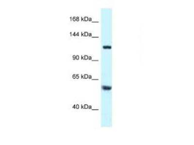 Rabbit Polyclonal TBCD Antibody