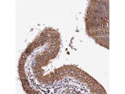 Anti-PRICKLE3 Antibody