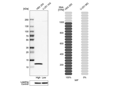 Anti-MIF Antibody
