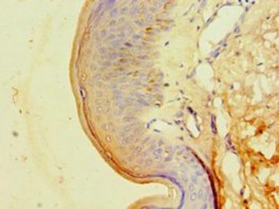 CA14 antibody