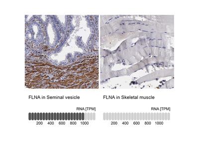Anti-FLNA Antibody