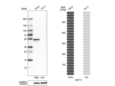 Anti-KRT17 Antibody