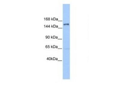 Rabbit Polyclonal PLEKHH2 Antibody