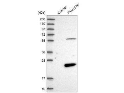 FAM167B Antibody