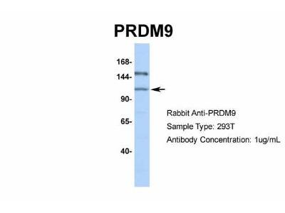 Rabbit Polyclonal PRDM9 Antibody