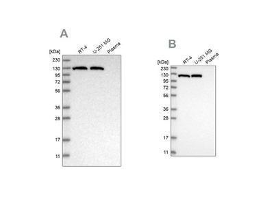 ATP Citrate Lyase Antibody