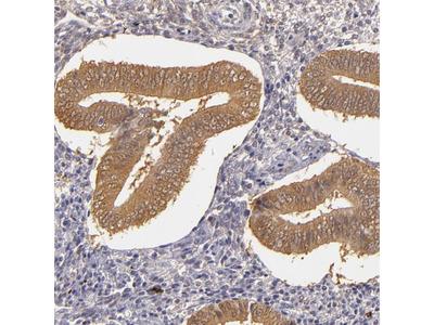 Anti-TOM1 Antibody