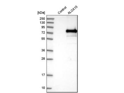 15-Lipoxygenase 1 Antibody