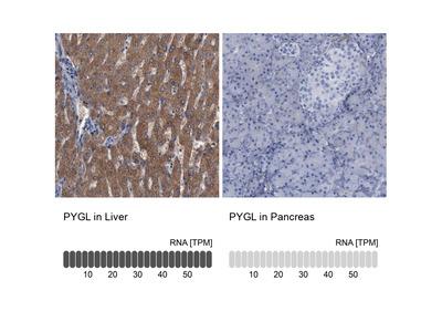 Anti-PYGL Antibody