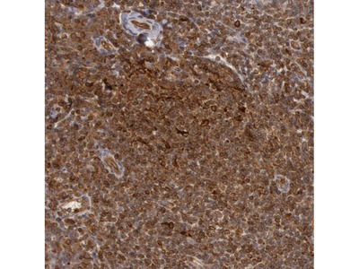 Anti-TAP2 Antibody