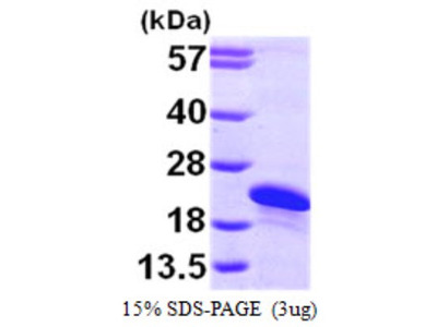 ARL2BP Protein