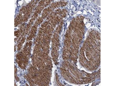 ESYT3 Antibody